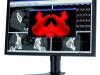 nec-26calowy-monitor-do-aplikacji-medycznych